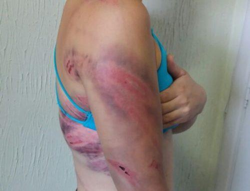 Homem é preso em Campinas suspeito de agredir mulher com mangueira de gás de cozinha